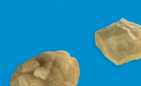 Two kidney stones over a blue background